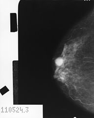 Mammogram_showing_cancer